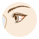 Conjunctivitis -Eye Disease, Side view Royalty Free Stock Photos