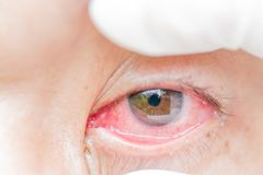 Conjunctivitis and inflammation in the eyes. Conjunctivitis, blood and inflammation in the eyes royalty free stock images