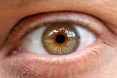 Conjunctivitis. Macro. The inflamed eye. Conjunctivitis. The inflamed eye of the tired man close up. Macro Stock Images