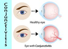 Conjunctivitis. pink eye with inflammation. External View and Vertical section of the human eyes and eyelids. stock illustration