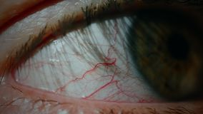 Conjunctivitis red eye. Close up of common eye infection and inflammation. Close up of an irritated red bloodshot eye stock video