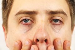 Conjunctivitis, tired eyes, red eyes, eye disease. Tired eyes, red eyes, eye disease, conjunctivitis, man shows eyes close up royalty free stock photography