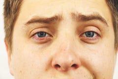 Conjunctivitis, tired eyes, red eyes, eye disease. Tired eyes, red eyes, eye disease, conjunctivitis, man shows eyes close up royalty free stock photos