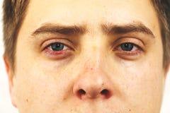 Conjunctivitis, tired eyes, red eyes, eye disease. Tired eyes, red eyes, eye disease, conjunctivitis, man shows eyes close up royalty free stock images