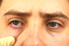 Conjunctivitis, tired eyes, red eyes, eye disease. Tired eyes, red eyes, eye disease, conjunctivitis, man shows eyes close up stock photo