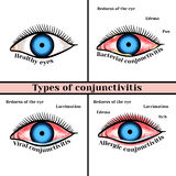 Conjunctivitis types. Inflammatory diseases of eyes Royalty Free Stock Photo