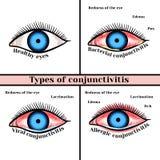 Conjunctivitis types. Inflammatory diseases of eyes vector illustration