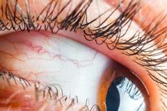 Conjuntivite capilar do olho humano do sangue dos cuidados médicos da medicina imagem de stock
