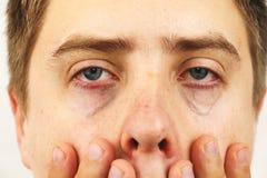 Conjuntivite, olhos cansados, olhos vermelhos, doença de olho fotografia de stock royalty free