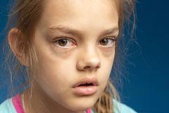 Conjuntivitis delante de una muchacha de diez años imagen de archivo