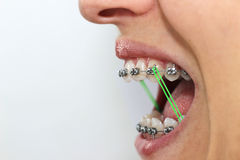 Connected. Elastics and dental braces on a woman Royalty Free Stock Photos