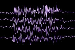 Conscience d'épilepsie Électroencéphalographie dans le patient d'épilepsie pendant l'attaque de saisie illustration libre de droits
