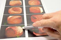 Consenso informato da medico in ospedale Fotografia Stock