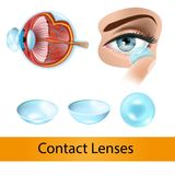 Contact Lenses Vector Concept or Chart with Eye vector illustration