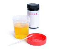 Container met urine en test-stroken voor de analyse Stock Foto