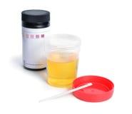 Container met urine en test-stroken voor de analyse Royalty-vrije Stock Foto