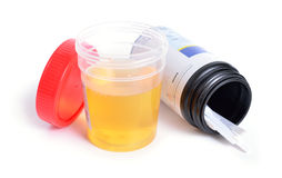 Container with urine and test-strips for the analysis. Royalty Free Stock Photo