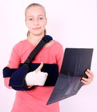 Contented girl with the X-ray photo and ok Royalty Free Stock Image