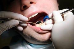 Contrôle dentaire vers le haut Le contrôle dentaire avec les outils dentaires sondent, miroir et tube d'aspiration dans la bouche photos libres de droits