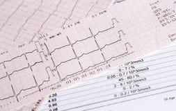 Contrôle de fréquence cardiaque images stock