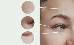 Contraste do conceito da terapia da correção da diferença do efeito da inchação dos enrugamentos dos olhos da mulher antes e depo fotos de stock