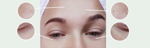 Contraste do conceito da terapia da correção da diferença do efeito da inchação dos enrugamentos dos olhos da mulher antes e depo fotografia de stock