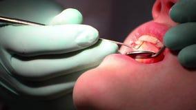 Control de la goma del dentista almacen de video