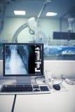 Control de la radiografía de procedimientos cardiacos en cathlab Imagen de archivo libre de regalías