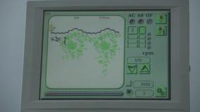 Control de máquina industrial del bordado por el ordenador en la materia textil almacen de video