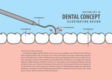 Control del diente de decaimiento de la disposición encima del estilo de la historieta de la carie para la información o b stock de ilustración