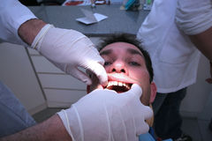 Controle dental foto de stock