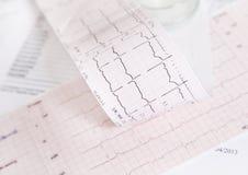 Controllo di frequenza cardiaca di elettrocardiogramma immagine stock