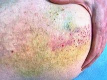 Contusión colorida grande en cuerpo Lugar doloroso del daño después del incidente deportivo Imagenes de archivo