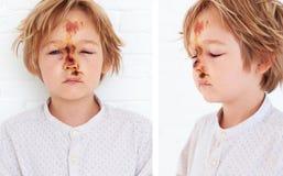 Contusion molle de tissu, oedème étendu de jeune visage de garçon, en raison d'une chute d'une bicyclette photos stock