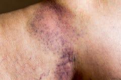 Contusion sur la peau blessée de jambe de dame âgée photographie stock