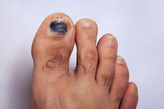 Contusion sur le clou d'orteil sur le pied droit photos stock