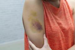 Contusione sul braccio della donna Contusioni dell'iniezione Il dottore e paziente immagini stock libere da diritti