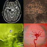 Coiling of the cerebral aneurysm, angiography. Conventional angiography, coiling of the aneurysm, concept of stroke, in blue Royalty Free Stock Photo