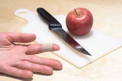 Cooking injury Stock Photography