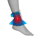Cool gel pack on a swollen hurting ankle. Royalty Free Stock Image