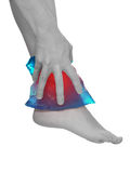 Cool gel pack on a swollen hurting ankle. Stock Image