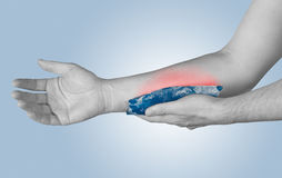 Cool gel pack on a swollen hurting arm.  Stock Images