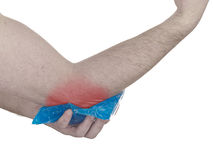 Cool gel pack on a swollen hurting elbow. Royalty Free Stock Image