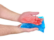 Cool gel pack on a swollen hurting palm. Royalty Free Stock Photography
