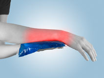 Cool gel pack on a swollen hurting wrist. Royalty Free Stock Photography