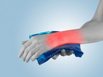 Cool gel pack on a swollen hurting wrist. Stock Photos