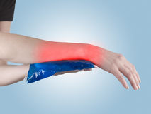 Cool gel pack on a swollen hurting wrist. Stock Image