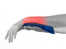 Cool gel pack on a swollen hurting wrist. Stock Photo