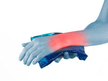 Cool gel pack on a swollen hurting wrist. Royalty Free Stock Photos