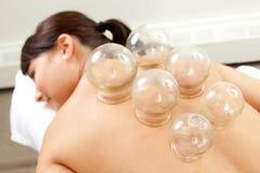Coordonnée de femme avec la demande de règlement mettante en forme de tasse d'acuponcture Photos stock